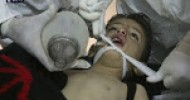 UN awaits full report on chemical attack in Syria IANS