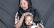 Somalia: A bitter journey of hope for sick children